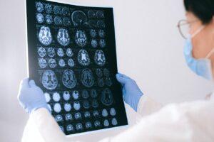 radio cerveau médecin